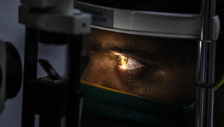 """El """"hongo negro"""" o mucormicosis, afecta los ojos, cerebro, pulmones y los ojos y puede ser fatal para algunos pacientes. (Foto Prensa Libre: EFE)"""