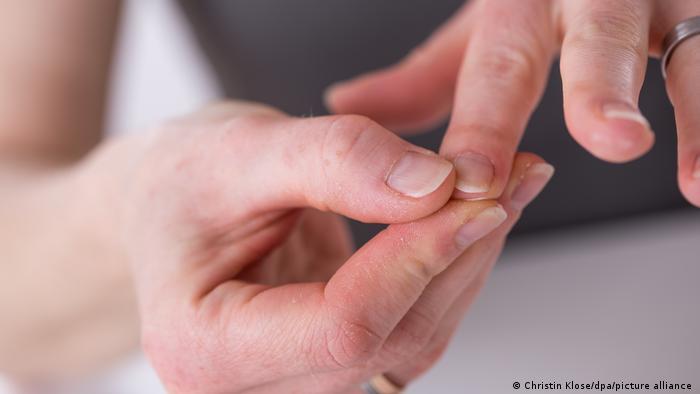 """Surgen informes sobre """"uñas COVID"""": estos cambios podrían indicar infección pasada por coronavirus"""