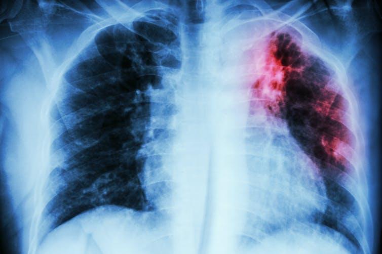 Tuberculosis y covid-19: ¿el nuevo dúomaldito?