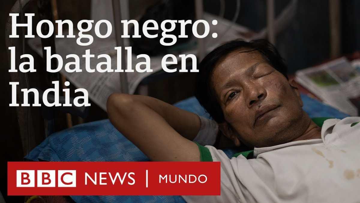 Hongo negro: la epidemia mortal contra la que luchan en los hospitales en India en medio de la pandemia de covid-19