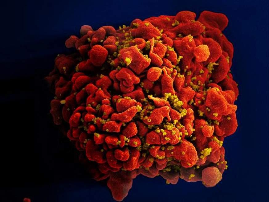 Fracasa ensayo de vacuna contra VIH de Johnson & Johnson, según autoridades sanitarias de EE. UU.