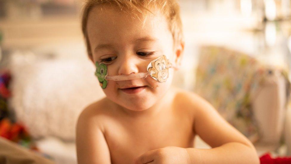 Por qué han aumentado drásticamente los casos entre los niños de un virus respiratorio poco conocido